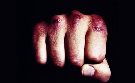Умышленное причинение тяжкого вреда здоровью повлекшее смерть: уголовная ответственность по статье 111 УК РФ, понятие, состав и признаки преступления